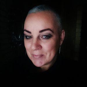 hair loss; hashimotos;